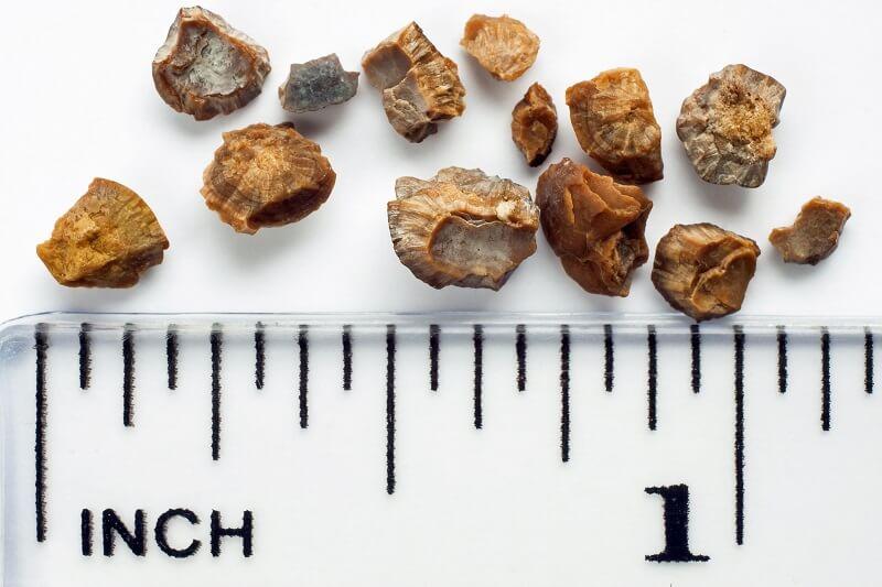 سنگ کلیه در اندازه ها مختلف