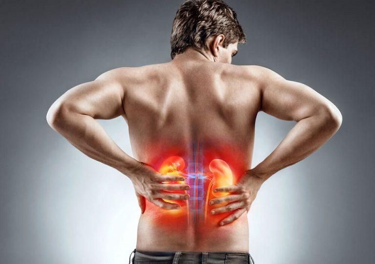درد کلیه ها، رژیم غذایی سنگ کلیه