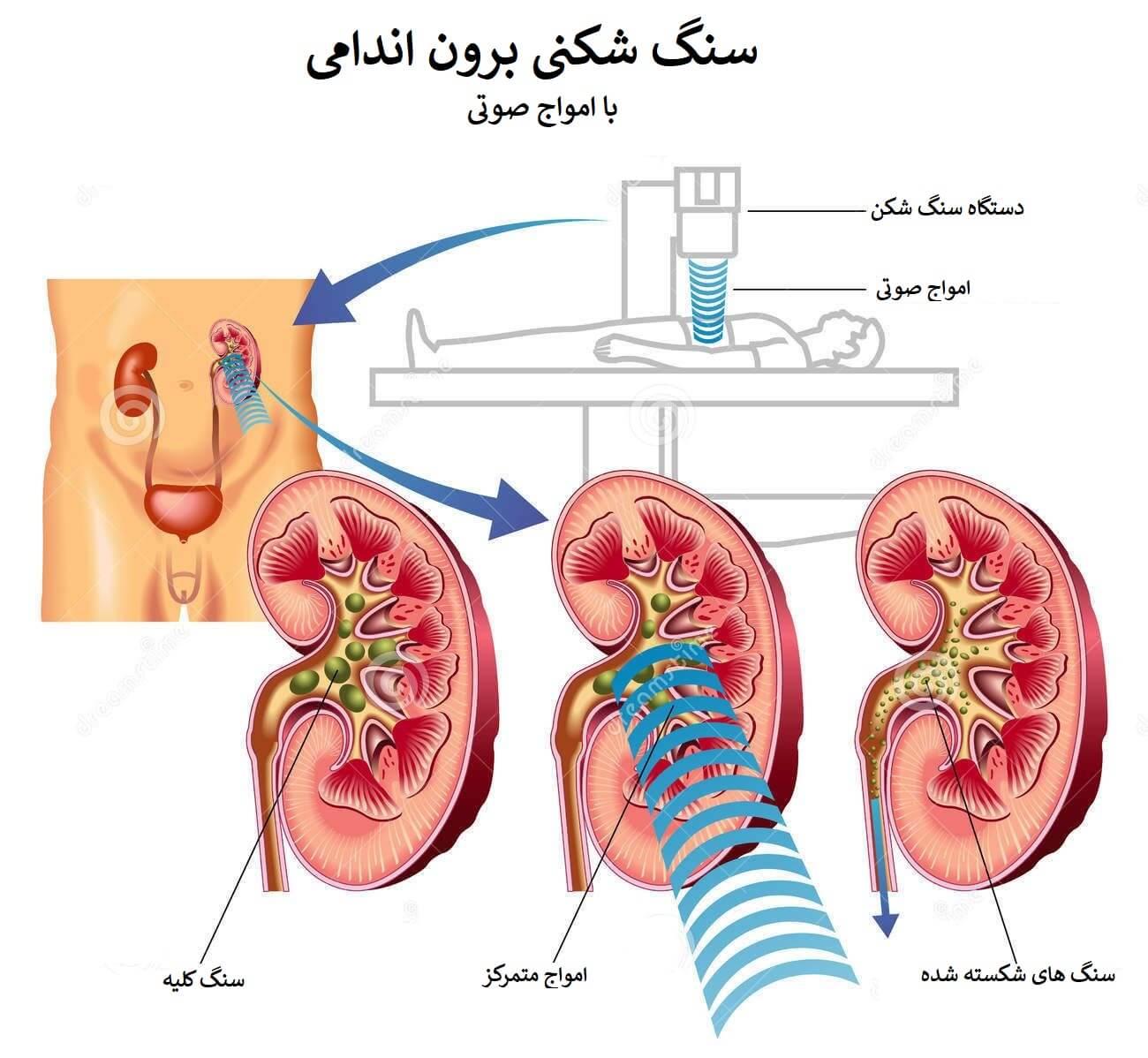 سنگ شکنی برون اندامی چگونه است
