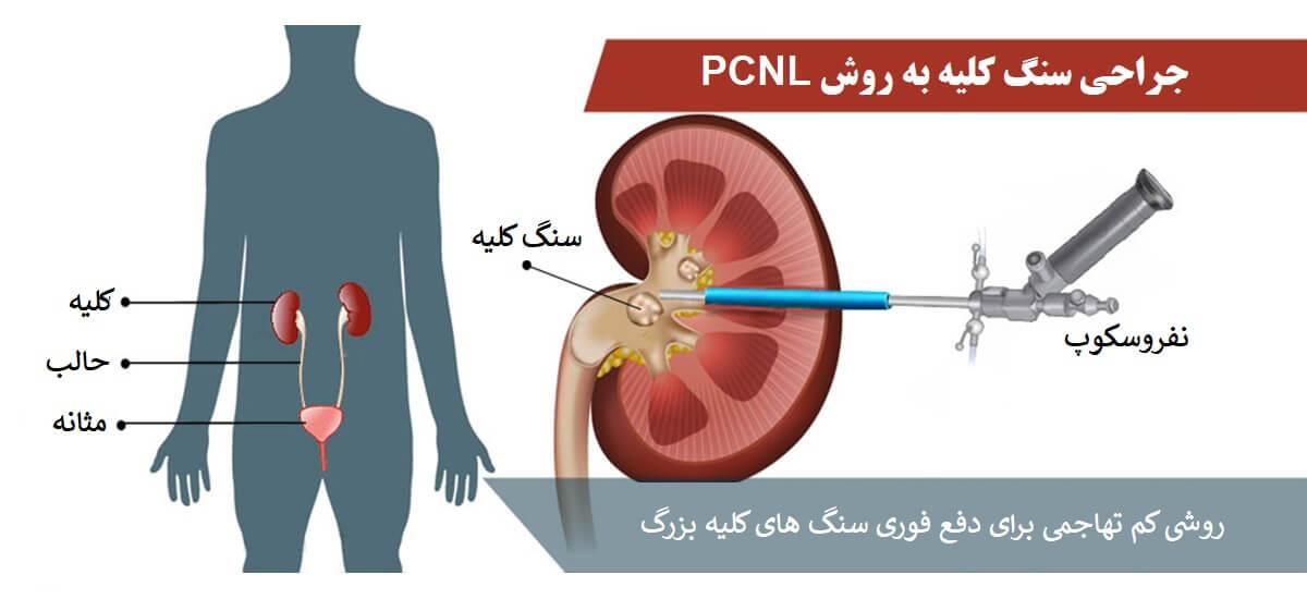 روش PCNL