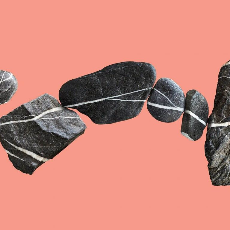 درمان سنگ کلیه با روش اندوسکوپی